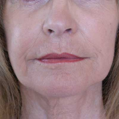 Fractora-with-facelift-front-after