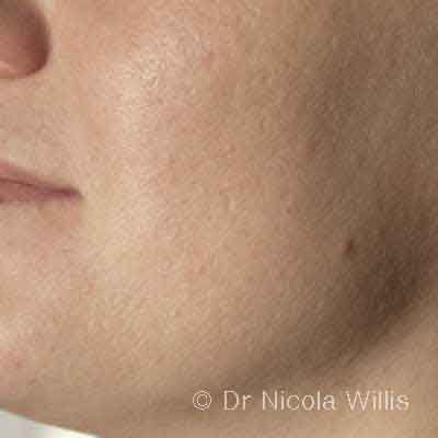Acne-cheek-after-treatment
