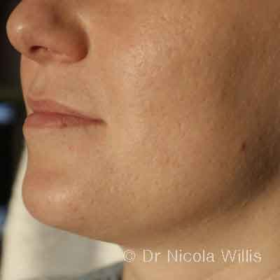 Acne-left-profile-after-treatment
