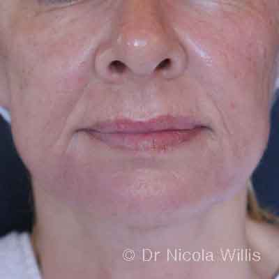 After-Forma-and-Filler-Dr-Nicola-Willis