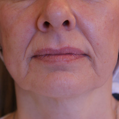 Before-Forma-and-Filler-Dr-Nicola-Willis