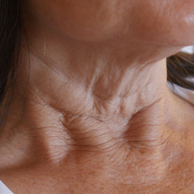 Before-Fractora-Neck-1
