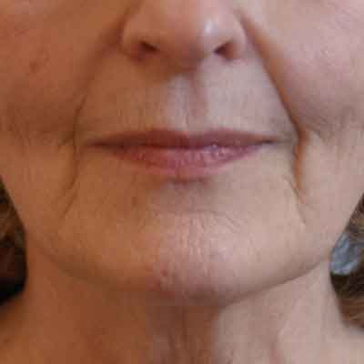 Filler-nasolabial-folds-before