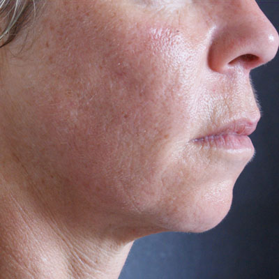 Forma-collagen-remodelling-after-1b