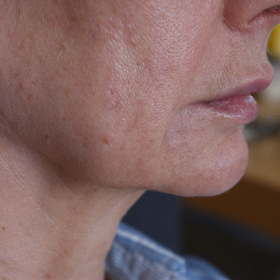 Forma-collagen-remodelling-after-3