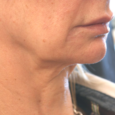 Forma-collagen-remodelling-before-3