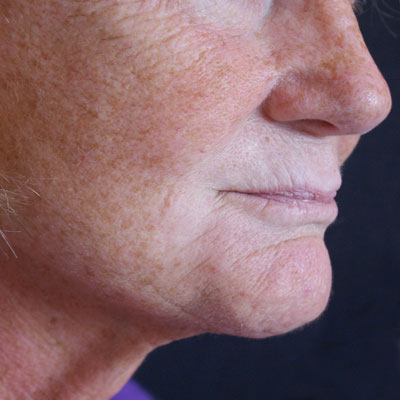Fractora-with-facelift-side-before