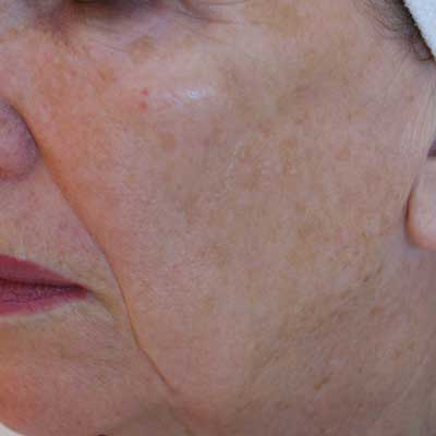 IPL-cheek-pigmentation-after
