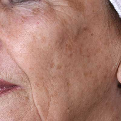 IPL-cheek-pigmentation-before-
