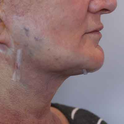 Necktite necklift - reduces turkey necks and double chins