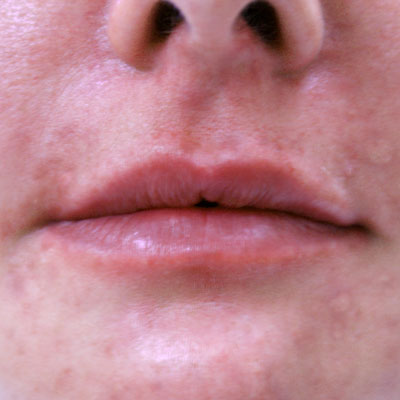 Lipfiller3_After