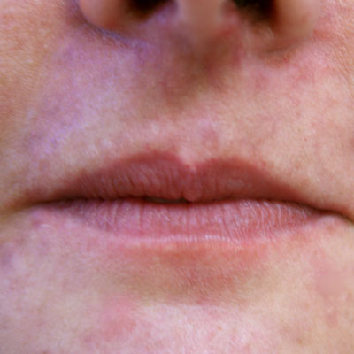 Lipfiller3_before