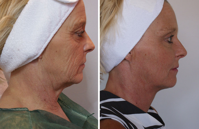 Fat transfer or, the 'organic facelift'
