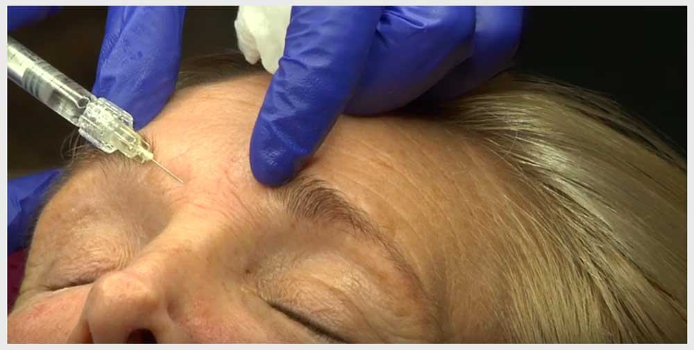 Watch Dr Nicola Willis demonstrate Botulinum injections